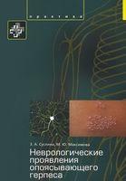 Неврологические проявления опоясывающего герпеса